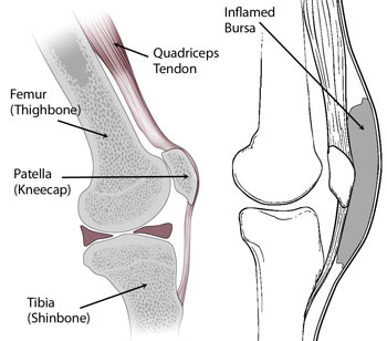 prepatellarbursitis